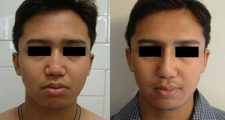 Flat nose-treated by augmentation