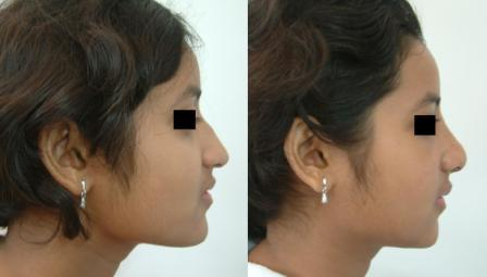 Hump Nose reduction & raising of tip of nose