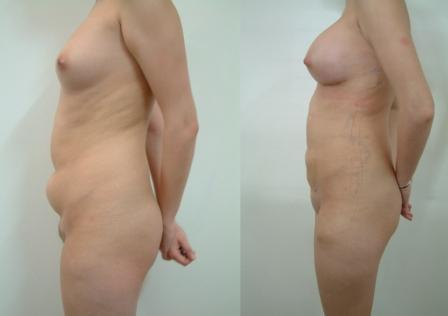 Liposuction Abdomen & Breast augmentation