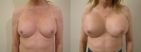 Massive Breast Augmentation-on an unusual request
