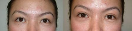 Oriental eyelids correction