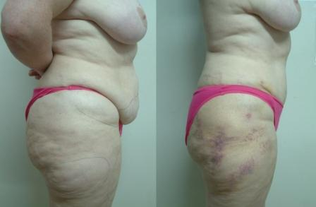 Tummy Tuck & Liposuction of Thighs-profile