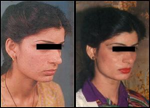 Dermabrasion for small pox face